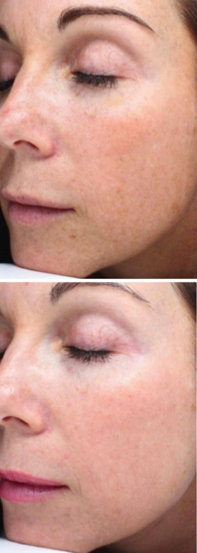 Reverta rosacea creme werkt ook tegen UV-schade