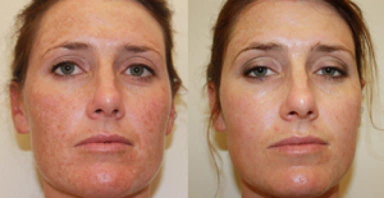Reverta rosacea creme vermindert beschadigingen van de huid