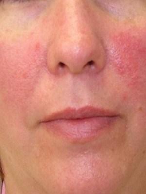Rosacea creme van Reverta verlicht rosacea op het gezicht