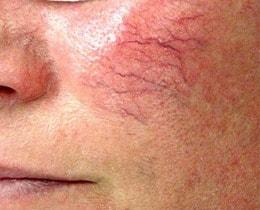 Pas in dit stadium van zichtbare couperose gaan de meeste mensen beseffen dat er iets met hun huid aan de hand is...