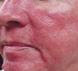 Verminder erytheem of aanhoudende roodheid met de rosacea creme van Reverta