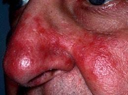 In de volksmond wordt rhinophyma vaak een bloemkoolneus of aardbeineus genoemd