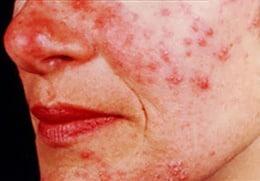 De puistjes en pukkels bij acne rosacea lijken erg veel op die bij gewone acne