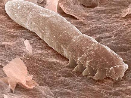Onderzoek toont aan dat zich op de door rosacea aangedane huid tien keer zoveel Demodex-mijten bevinden als op een normale huid