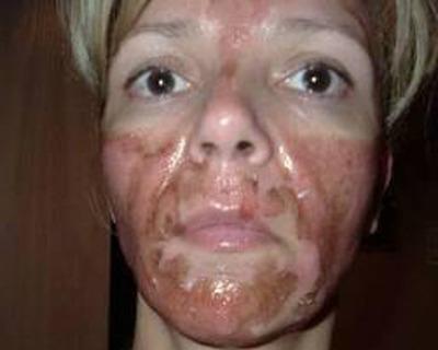 Behandeling van rosacea met AHA's, BHA's en andere fruitzuren: vaak veel te agressief voor de rosacea-gevoelige huid