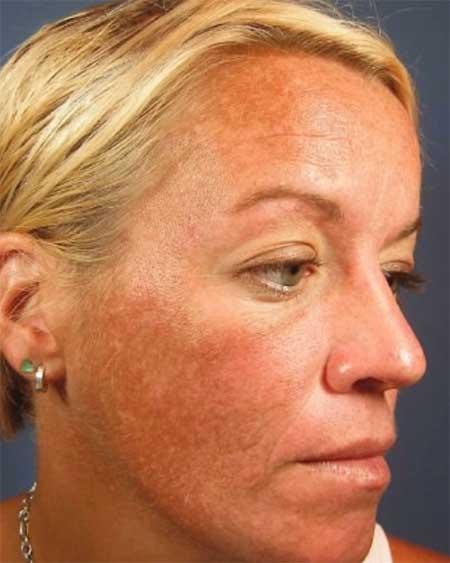 Een van de oorzaken van rosacea is UV-schade veroorzaakt door overmatige blootstelling aan de zon of zonnebank