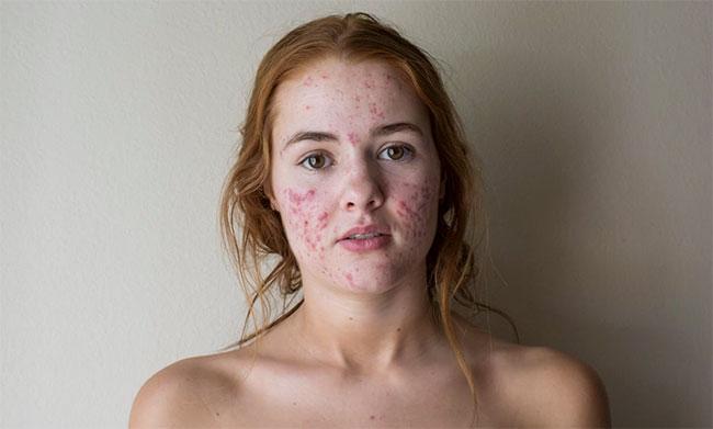 Gebruik salicylzuur in plaats van benzoylperoxide bij acne