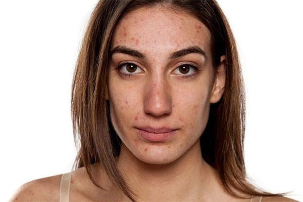 Ook bij acne speelt de balans tussen goede en slechte bacteriën op de huid een belangrijke rol