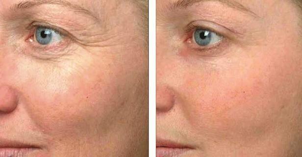 Anti-aging resultaten