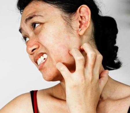 Ruim 8 op de 10 mensen met rosacea krijgen een branderig en prikkend gevoel en jeuk na gebruik van gewone huidverzorgingsproducten
