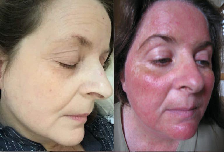 Rosacea behandeling - van de regen in de drup door steroïde-acne